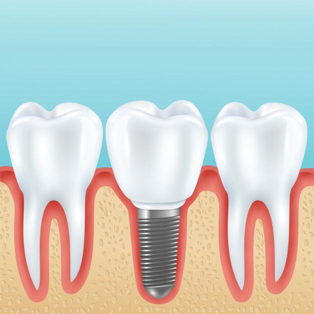 Implantes y Peridoncia